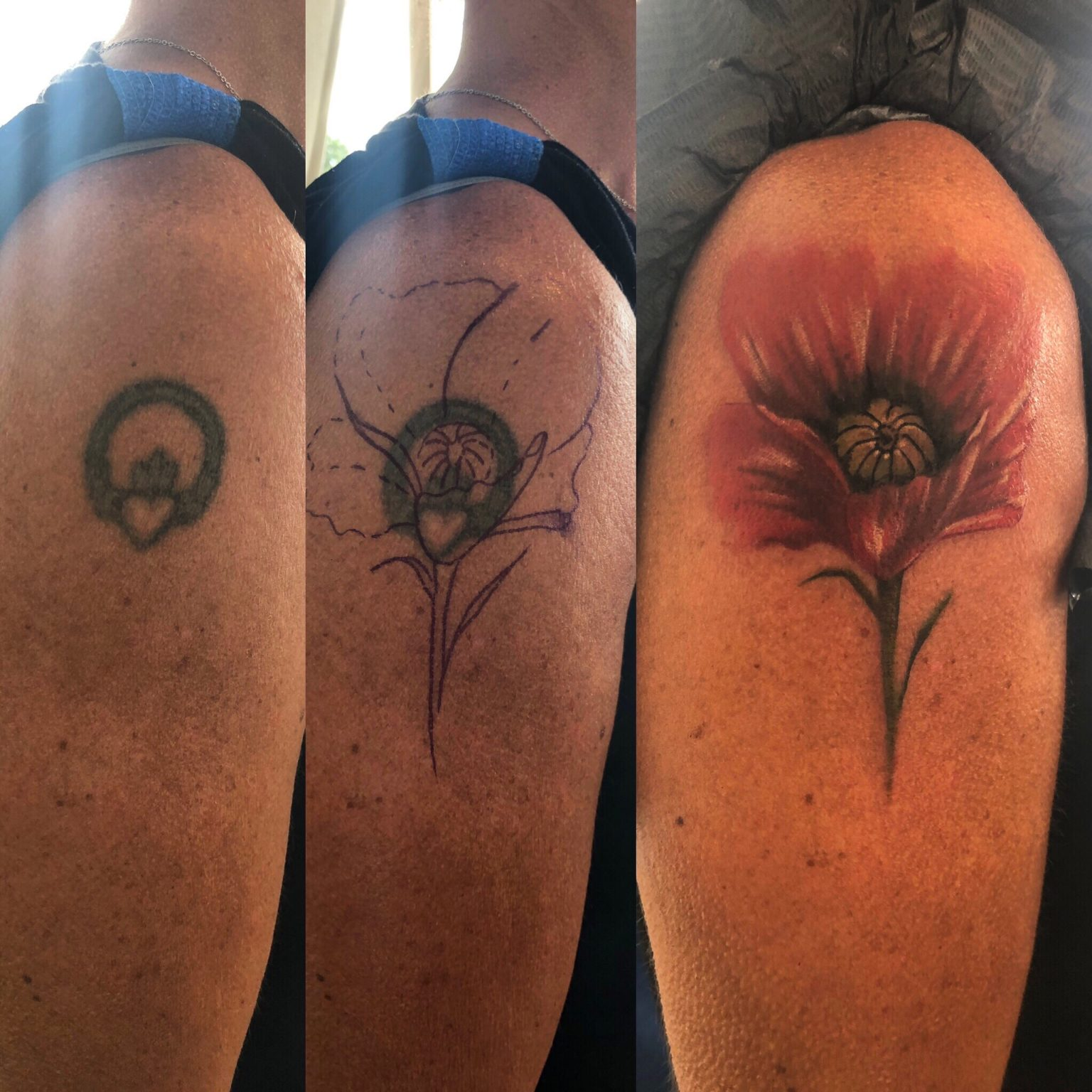 Poppy Cover Up Shoulder Tattoo